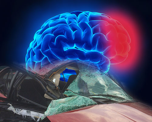MVA Brain Injury2