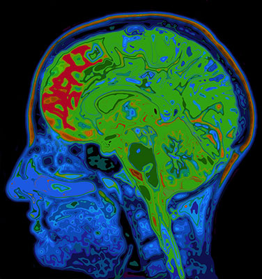 brain color scan